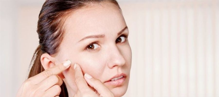Get rid of pimples easily through these steps