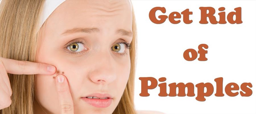 Natural home remedies to get rid of pimples