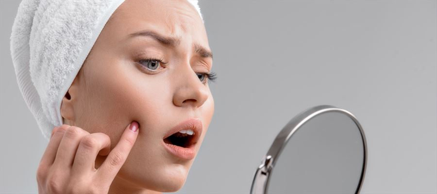 do you have pimple problem? here is a solution