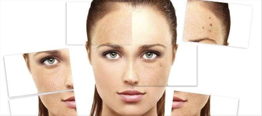 Common summer skin problems and remedies