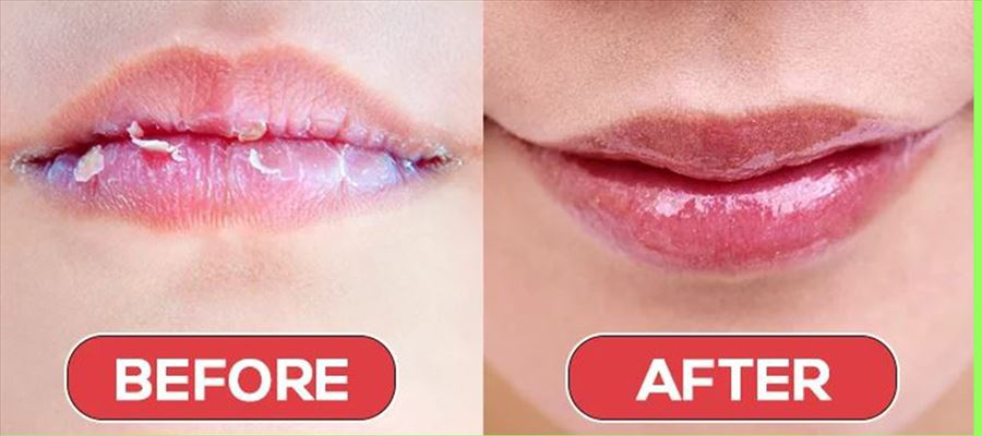 Is your lips dried this winter, try this homemade remedies