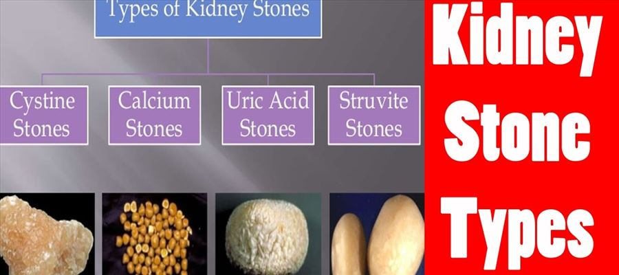 Types of Kidney stones which you should know