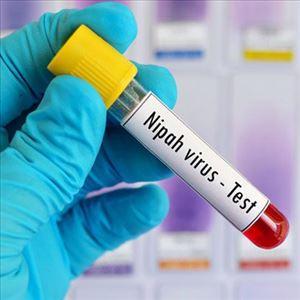 #NipahVirus - What is Nipah Virus? How can one avoid it?